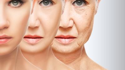 Rejuvenecimiento Facial, Dr Fernando Molina Galeana